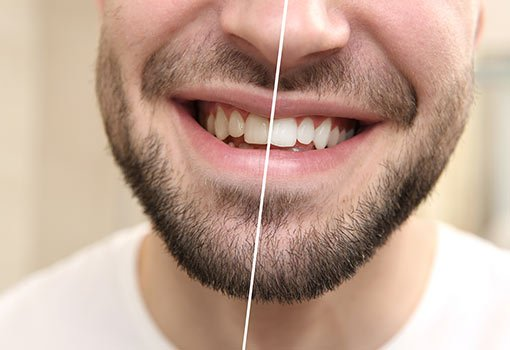 Mens-teeth-whitening-milton-keynes