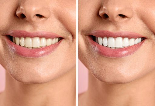 Womens-teeth-whitening-milton-keynes