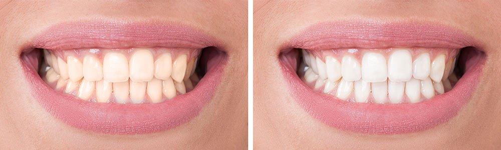 teeth-whitening-milton-keynes-before-after
